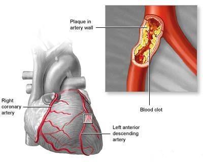 ถั่งเช่า ลดปริมาณของไขมันที่ไม่ดีในเลือด